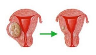 Эхопризнаки миомы матки малых размеров 1