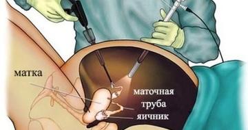 Удалить миому матки лапароскопически сохранив матку