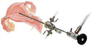 Удаление миоматозного узла при гистероскопии 24