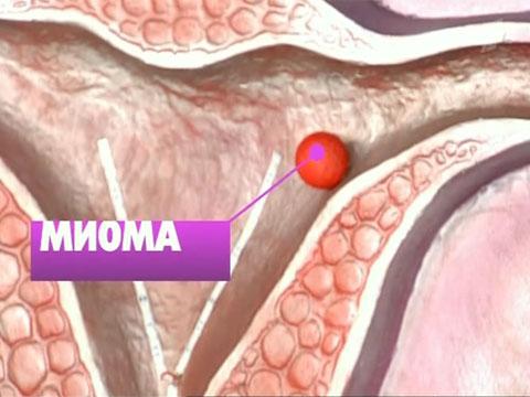 Миома матки после операции Твой гинеколог