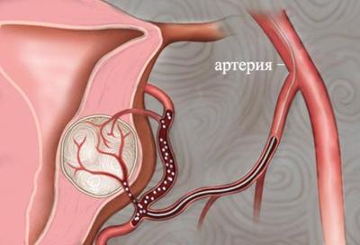 Фото:Эмболизация маточных артерий. Последствия