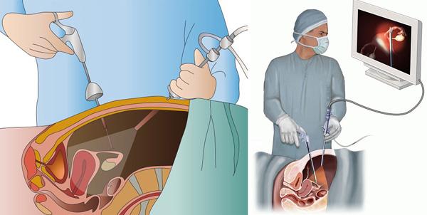 Фото:Отзывы после операции по удалению миомы матки
