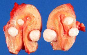 Фото:Интерстициальная миома тела матки