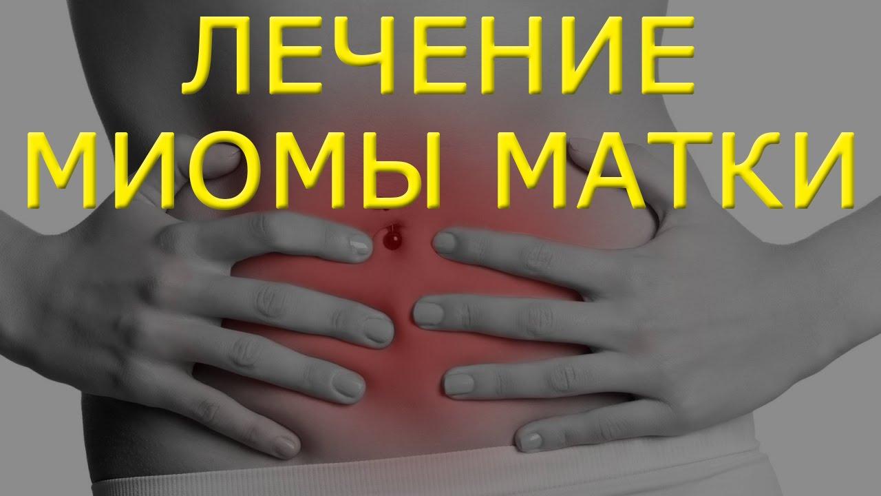 Лечение миомы матки народными средствами