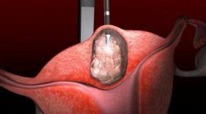 Фото:Интерстициальная и интерстициосубсерозная миома матки